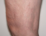 Spider Veins - After Treatment
