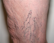 Spider Veins - Before Treatment