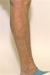Varicose Veins - After Treatment