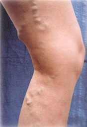 Varicose Veins - Before Treatment